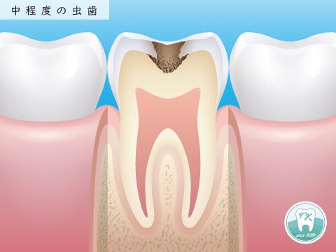 虫歯 中程度 MIに基づく治療