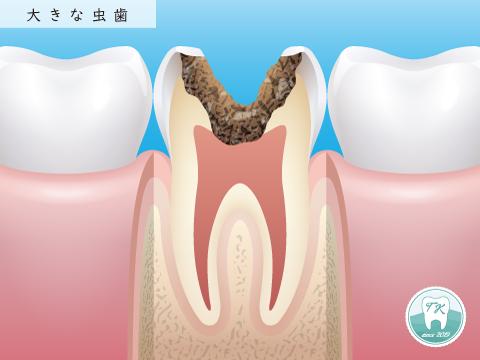 大きな虫歯 重度