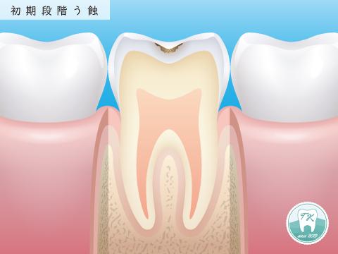 虫歯 初期段階う蝕