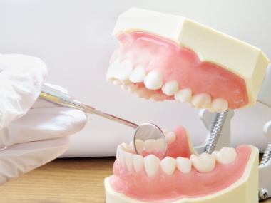 予防歯科 メンテナンス